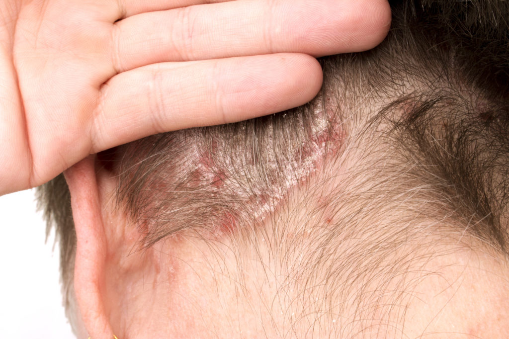Detail of Psoriasis Vulgaris, skin disease